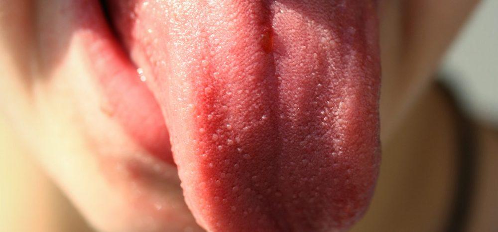 Kann man seine eigene Zunge verschlucken?