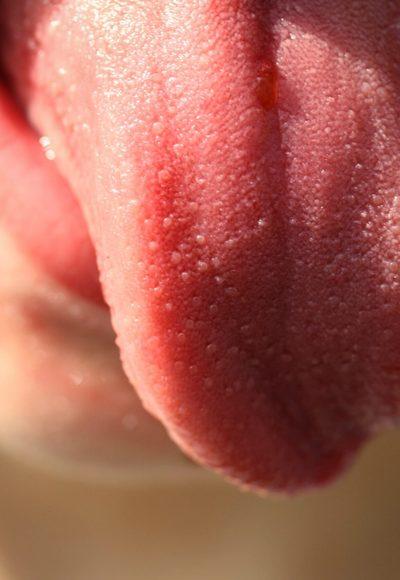 Zunge verschlucken möglich?