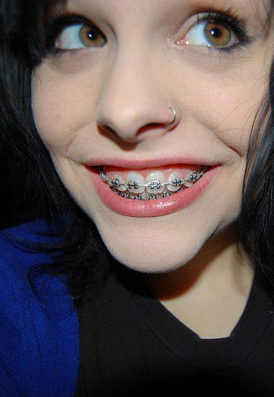 ...gibt es Zahnspangen?