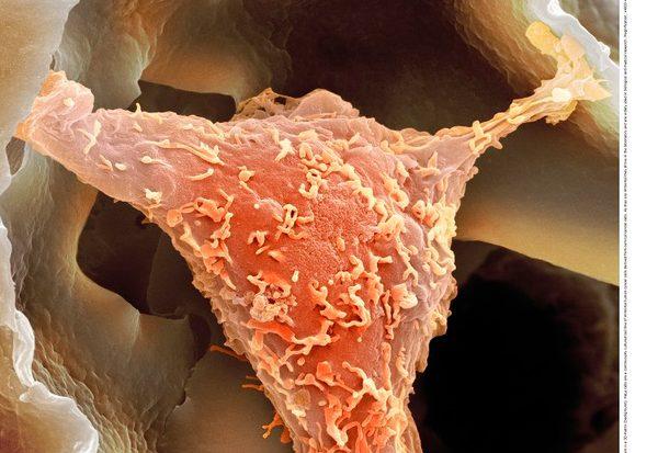 """Was sind """"HeLa-Zellen""""?"""