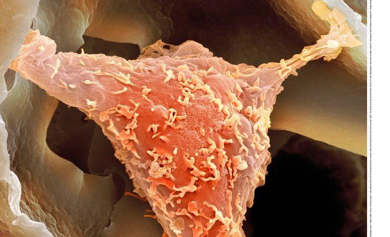 Wessen Zellen führten zu einer medizinischen Revolution?