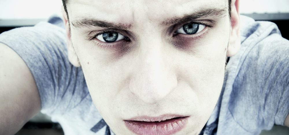 Augenringe entstehen bei Schlafmangel