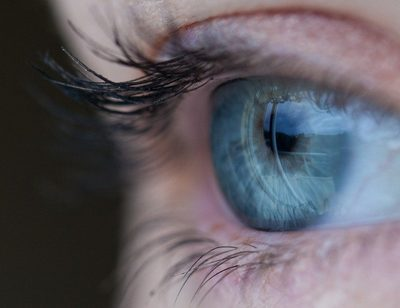 Woher kommen Augenflecken?